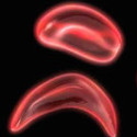 New Discovery May Improve Treatment for Those Who Suffer From Sickle Cell Disease