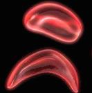sickle-cells